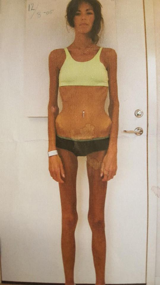 Evelina Meyer ze Švédska málem přišla kvůli anorexii o život.