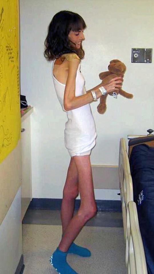 Brittany se v nejtěžších časech dostala až na smrtelnou váhu 26 kilogramů.