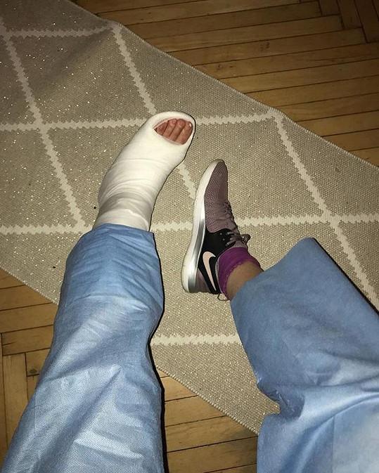 Herečka a návrhářka má nyní nohu v sádře.