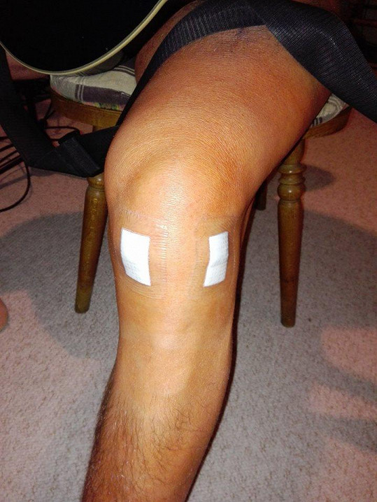 Martin je po operaci kolene a čekají ho další operace.