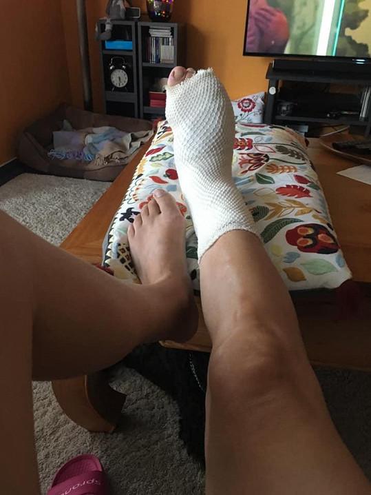 Zpěvačka má zlomenou nohu.