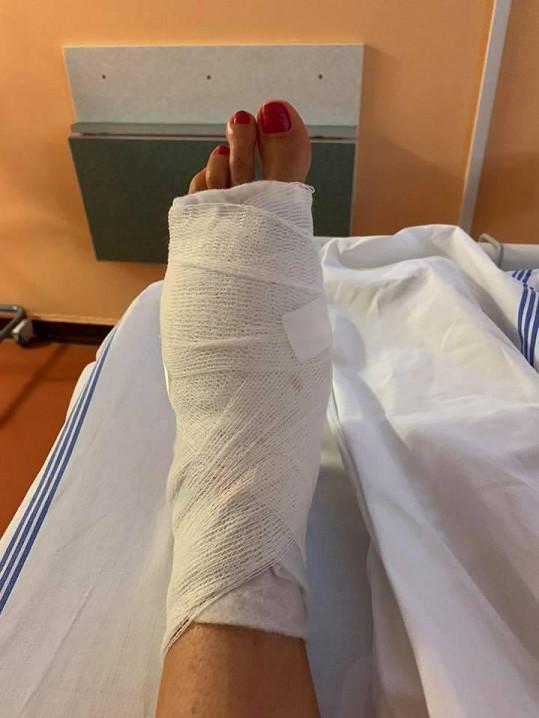 Byla na operaci levé nohy.