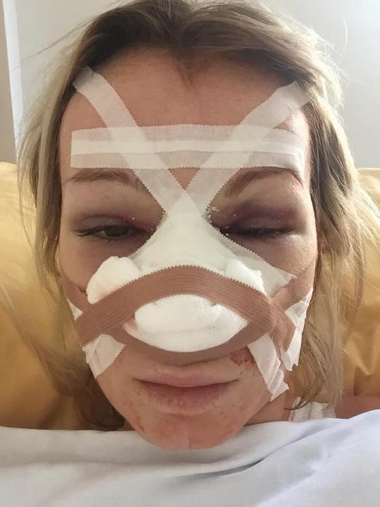 Takhle děsivě Eva vypadala bezprostředně po operaci.