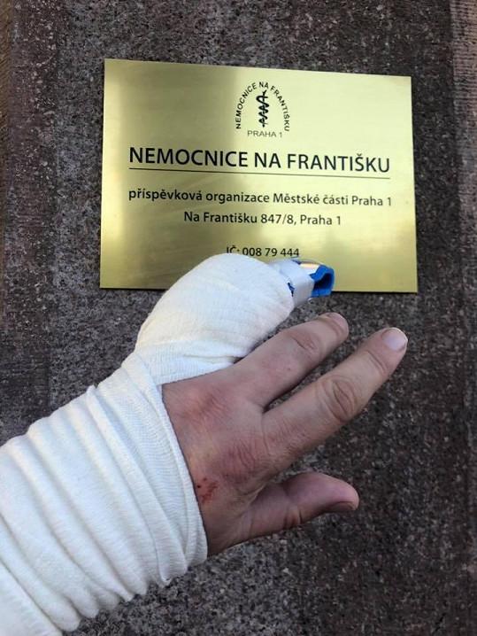 Herce v pražské nemocnici ošetřoval jeho starší bratr Petr.