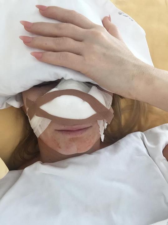 Operace nosu jí zcela změnila obličej.