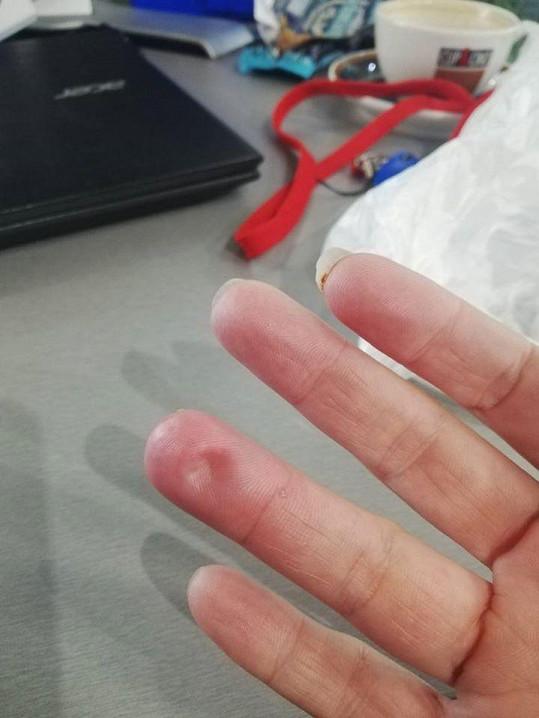 Prst si prorazila šestikilovou činkou.
