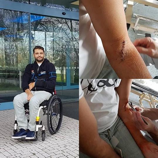 Muž roku 2009 popsal krušné chvíle po operaci ruky.