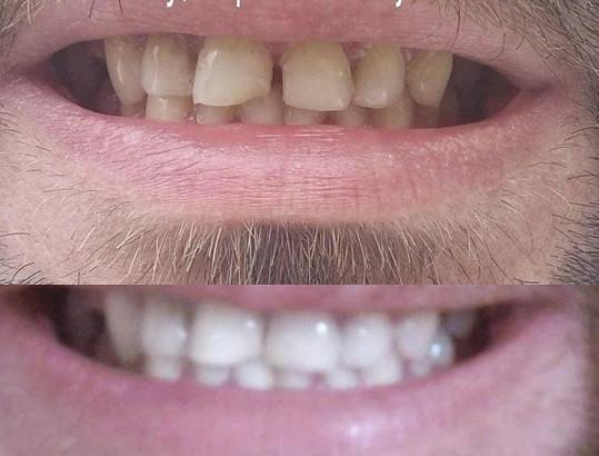 Macura před a po stomatologickém zákroku