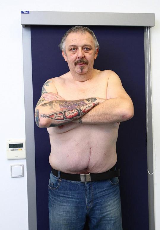 Zhubnul, podstoupil odstranění nadbytečné kůže a teď se hodlá pustit do zpevňování.
