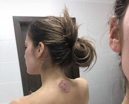 Andrea Bezděková přiznala obrovské problémy s pleťí.