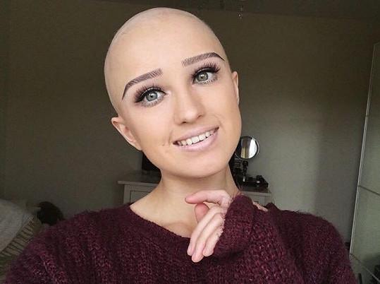 Alopecie ji dostihla přesně ve věku, kdy začínají mít dívky plnou hlavu chlapců