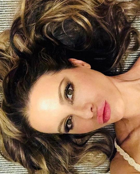 Kate Beckinsale nařkl hater na sociální síti z botoxu.