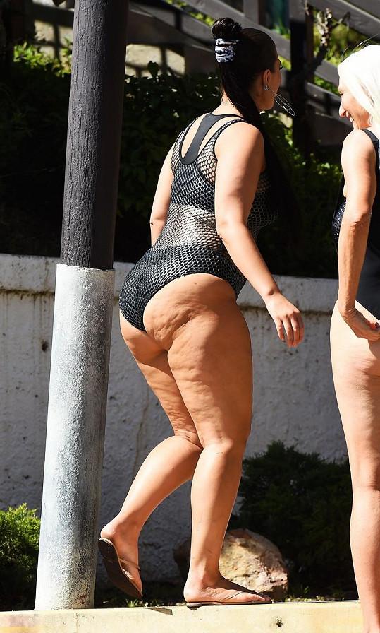 Modelka ukázala pomerančovou kůži.