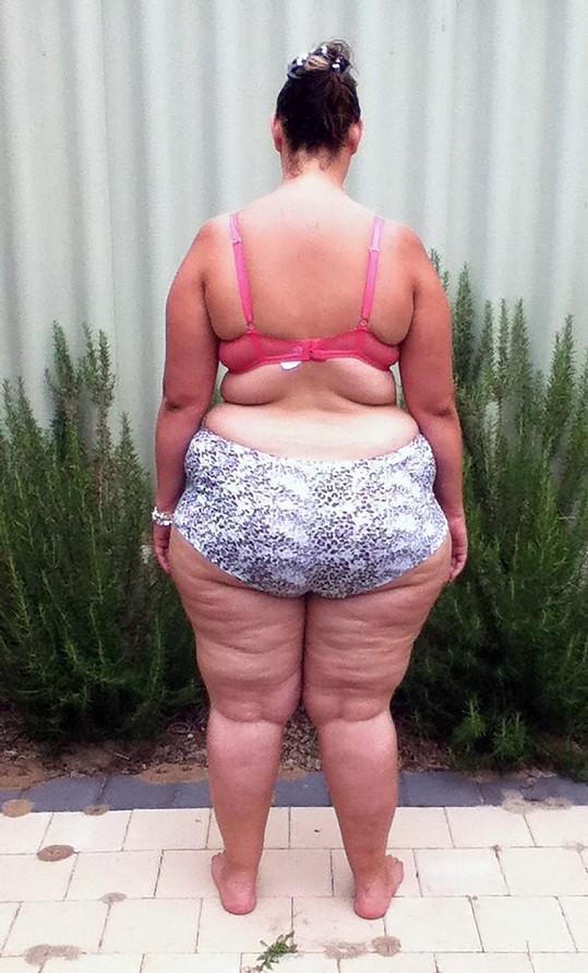 Obézní žena se nechala zvěčnit před hubnutím.