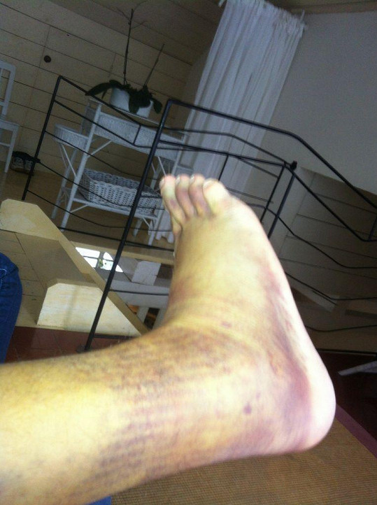 Tak vypadala po nehodě noha Mirka Dopity.