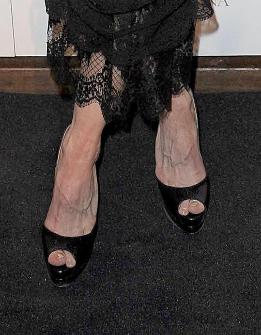 Zpěvaččiny nohy upoutaly pozornost mnoha fotografů.