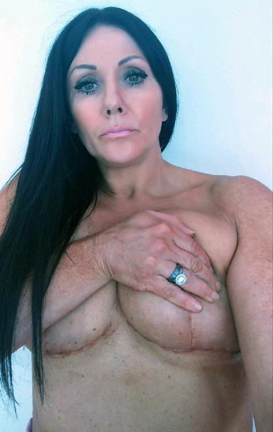 Janey má po operaci zohavený hrudník.