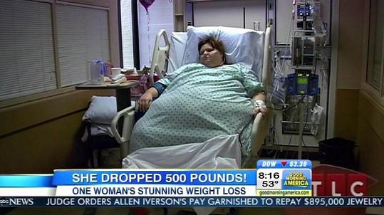 Američanka musela podstoupit žaludeční bypass.
