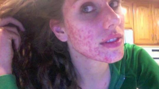 Cassandra trpěla silným akné.