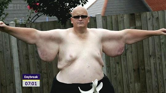 Paul Mason sice zhubl, ale trápí ho velké množství přebytečné kůže.