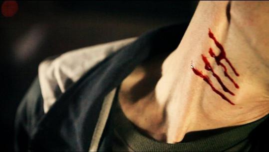 O krvavé šrámy nebyla nouze.