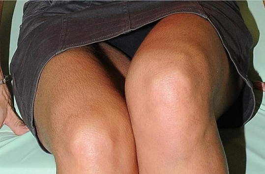 Míša neměla oholené nohy a stehna.