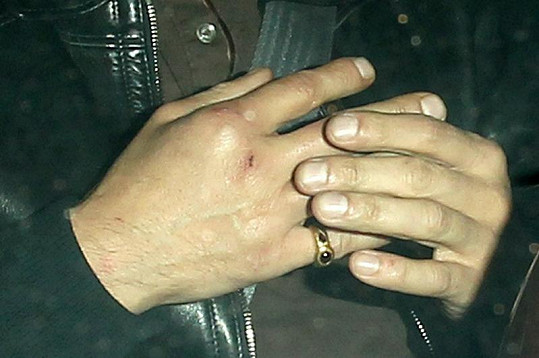 Olivier a jeho zraněná ruka.