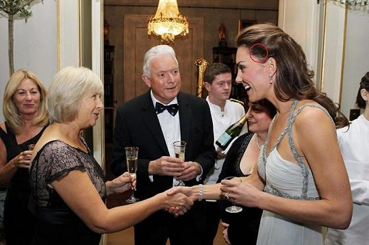 Kate Middleton a její jizva.