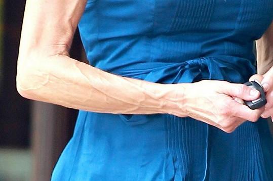 Nepřirozená štíhlost a cvičení mají za následek nepěkně žilnaté ruce.