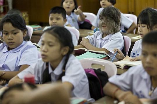 Supatra chodí do školy se zdravými dětmi.