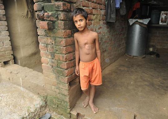 Sedmileté dítě trpělo vadou zvanou polymelia.