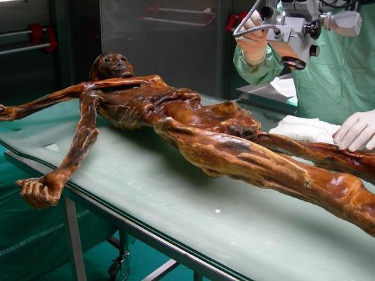 Mumie ledového muže Ötziho