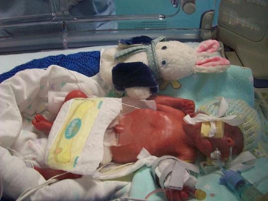 Harrison vážil po narození pouhých 652 gramů.