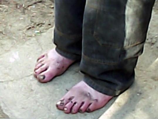 Špatná životospráva Oty Šimka je vidět i na jeho zničených nohách.