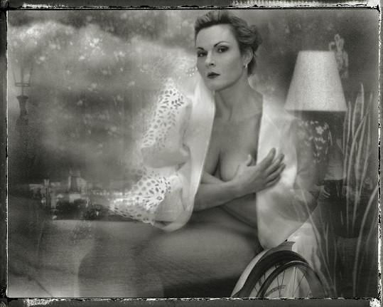 Fotograf upozadil postižení modelů a modelek.