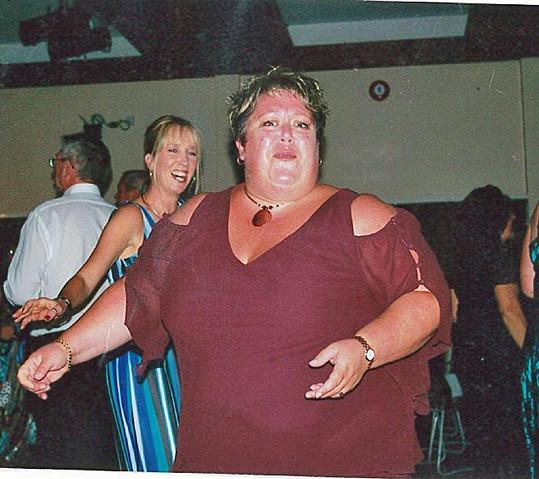 Kerrie Kew před bypassem žaludku.