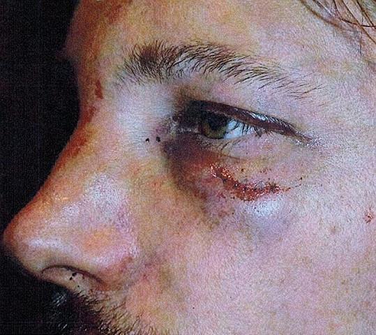 Martinez uštědřil Aubrymu opravdu mnoho ran.