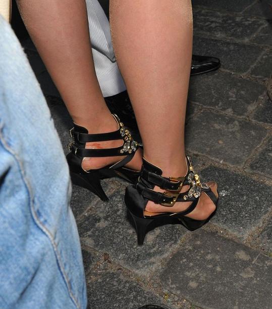 Ivetiny rozedřené nohy