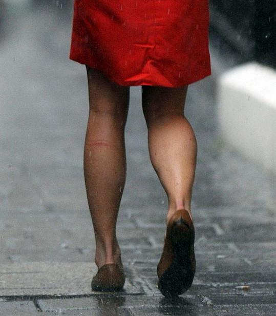 Vypracované nohy Pippy Middleton a hrozivě vypadající jizva.