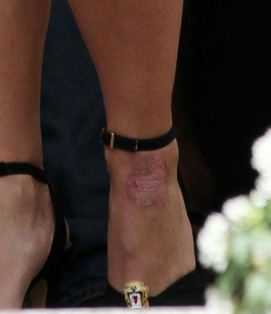 Světoznámá zpěvačka má na noze ošklivý ekzém.