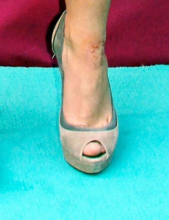 Britney podle tisku trpí kožní nemocí.