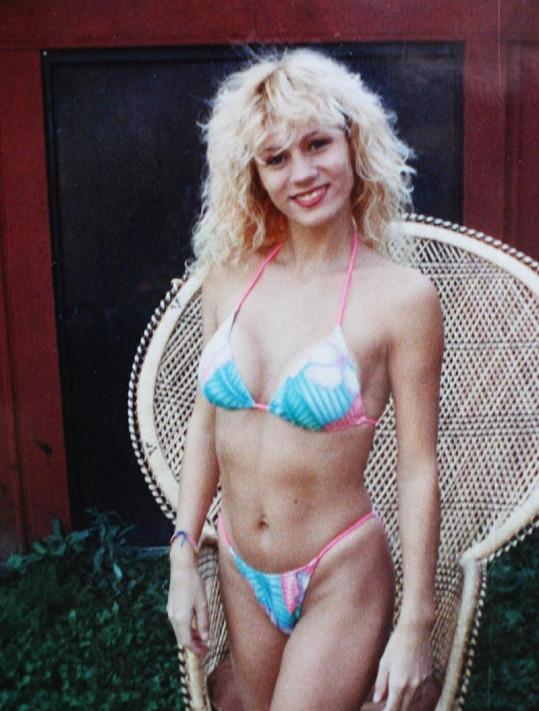 Lacey v roce 1990 po prvním zvětšení poprsí.
