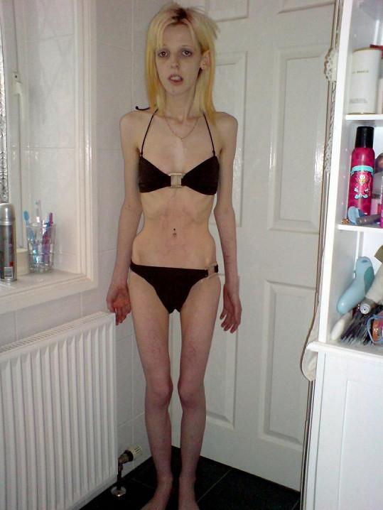Annabel se stala anorektičkou kvůli šikaně ze strany spolužáků.