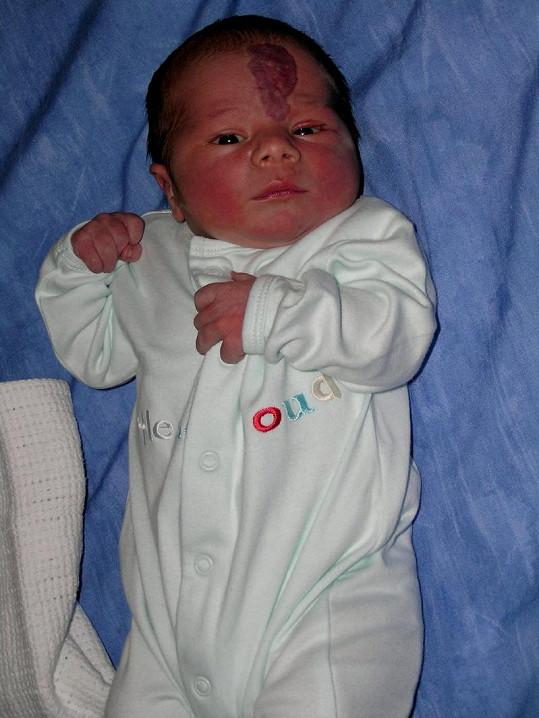 Malý George se narodil s velkým mateřským znaménkem na čele.