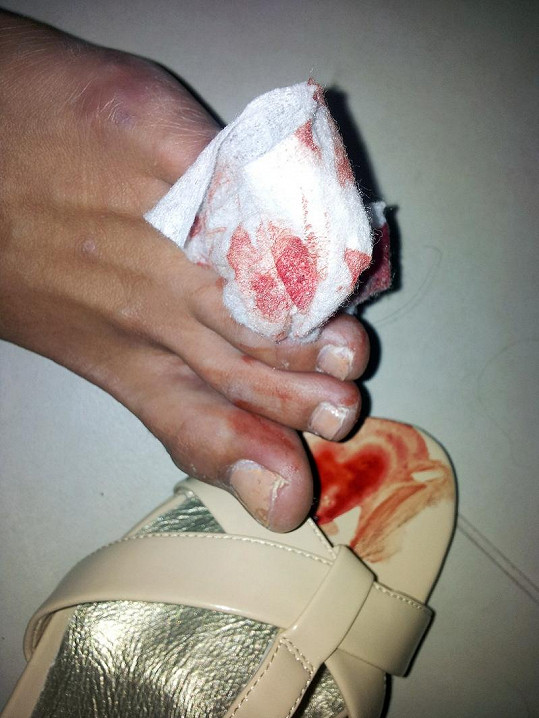 Eliška si rozřízla prst.