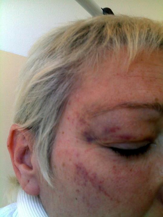 Rychtářová měla zraněné i oko a tvář.