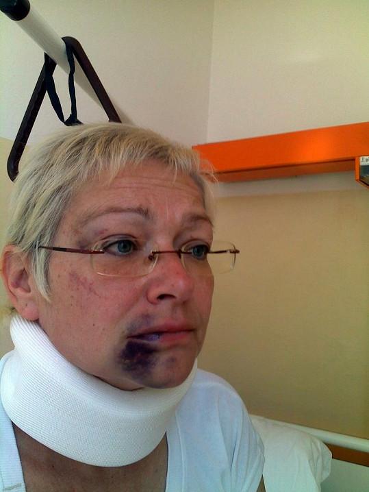 Darina Rychtářová po údajném napadení manželem.