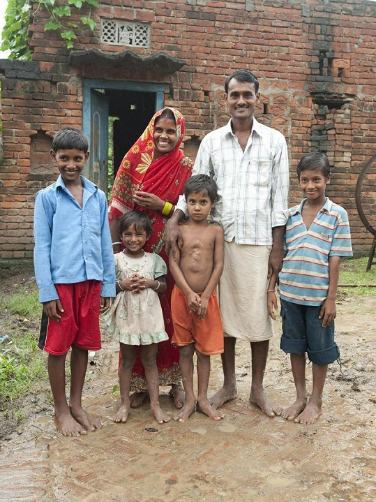 Deepak s celou rodinou po chirurgickém zákroku.