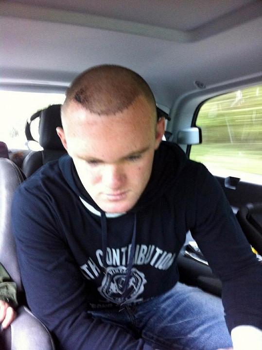 Rooney po transplantaci vlasů posílal fotografie na Twitter.