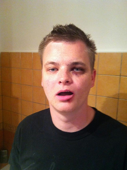 Moderátor Kazma po údajném útoku Rytmuse.